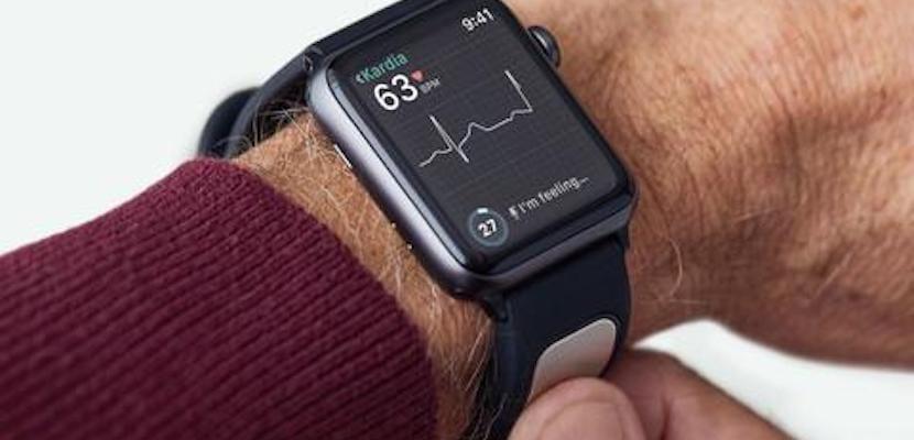 KardiaBand también te permite hacerte un ECG con tu Apple Watch