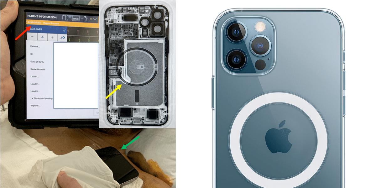 El iPhone 12 desactiva un desfibrilador